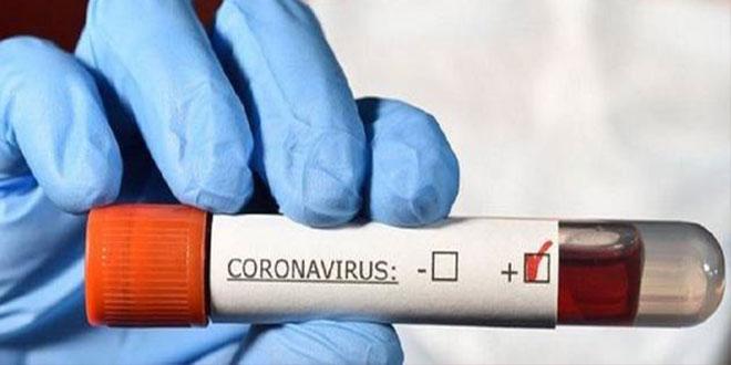 قبلي: تسجيل 31 حالة جديدة بفيروس كورونا .